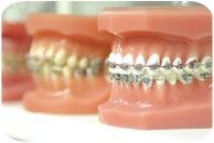 braces for teeth, clear braces for teeth, color braces for teeth
